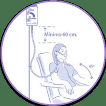 pasos previos sonda nasogástrica
